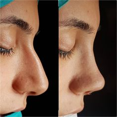 aesthetic aesthetic surgery job job before and after remodelling Nose Plastic Surgery, Nose Surgery, Nose Fillers, Pretty Nose, Rhinoplasty Before And After, Perfect Nose, Balayage Hair, New Hair, Skin Care