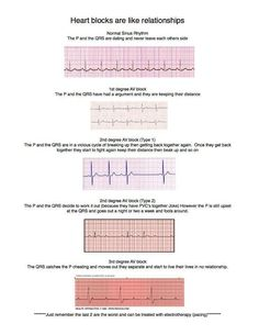 ***Heart blocks- comparing it to human relationships.  Neat way to remember various blocks