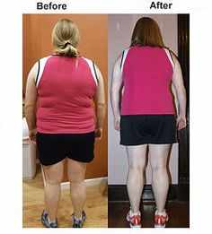 Weight loss too fast problems image 7