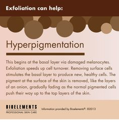Why do you need an #ultradetoxpeel? Exfoliation can help hyperpigmentation!