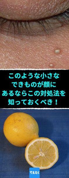 このような小さなできものが顔にあるなら、この対処法を知っておくべき!顔のぶつぶつ稗粒腫の原因と治し方。#稗粒腫 #治し方 #取り方 #ぶつぶつ #自然な方法 #皮膚科 #ちえとく