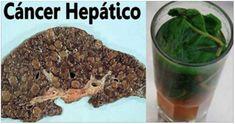Aunque no lo creas: tómalo de un solo golpe y dejaras tu hígado como nuevo, es muy efectivo para muchos!!!
