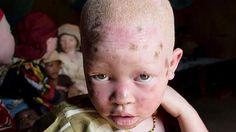 Tanzania prohíbe las actividades de los curanderos para poner fin a los ataques contra los albinos