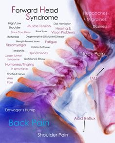 Sullivan, IN Chiropractor offers chiropractic care, massage, pain relief and wellness services. Neck And Shoulder Pain, Shoulder Muscles, Neck Pain, Chiropractic Wellness, Chiropractic Benefits, Chiropractic Quotes, Chiropractic Center, Occipital Neuralgia, Ankylosing Spondylitis