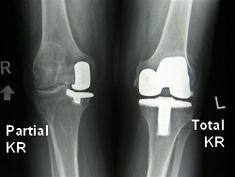 If arthritis only affects one side of the knee, you can have a partial (unilateral) knee replacement.  If both sides are affected, you will need to have a total knee replacement