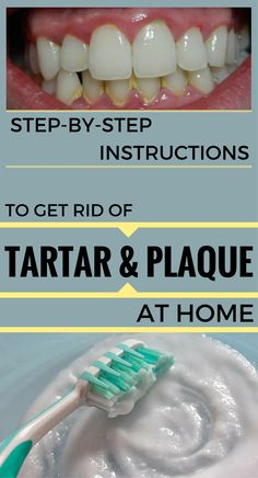 Step-By-Step Instructions To Get Rid Of Tartar And Plaque At Home – RemediesSpot.com Dental Health, Oral Health, Dental Care, Dental Hygiene, Teeth Health, Health Care, Plaque Removal At Home, Homemade Mouthwash, Tartar Removal