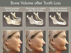 Bone Volume after Tooth Loss. This shows what happens when you do not replace missing teeth with dental implants.