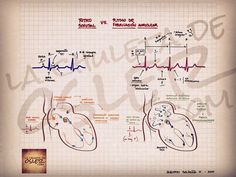 Ritmo sinusal vs ritmo de Fibrilacion auricular  Fuente:chuletadeosler.com