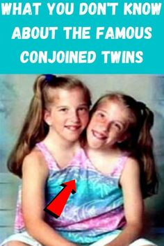 Abby and Brittany Hensel were born as conjoined twins in 1990. Their distinctiveness comes with the fact that they have a joined body, but with different heads in which each twin uses to control the half of their body. Their brave and compelling experience shot them to prominence when they were rewarded with Abby and Brittany reality TV show by TLC network which aired on the same network in the year 2012. At the culmination of their reality TV show, they slipped off the radar a bit.