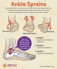 A twisted ankle is the most common sports-related injury ➡ http://ahealthblog.com/0kyq  via @AHealthBlog