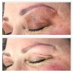 Paula trains students to do the Fibroblast skin tightening, who would you trust? Look at these upper eyelid results, a new woman with restored confidence Skin Tag Treatment, Skin Treatments, Plasma, Facial Before And After, Eyebrows Sketch, Facial Anatomy, Botox Cosmetic, Facial Aesthetics, Skin Care Spa