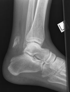 Radiology Picture of the Day » Archives » Calcaneal Tuberosity Avulsion Fracture