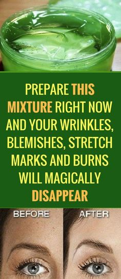 PREPARE THIS MIXTURE RIGHT NOW AND YOU WON'T BELIEVE YOUR WRINKLES, BLEMISHES, STRETCH MARKS AND BURNS WILL MAGICALLY DISAPPEAR!