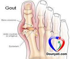 دنيتي | الصحة | مرض الأملاح او النقرس هو نوع من التهابات المفاصل ناتج عن ترسيب أملاح اليوريك, في أنسجة المفاصل وما يحيط بالمفصل من غضاريف وعضلات ويظهر غالبا في المفاصل الصغيرة مثل اصابع اليد والقدم خاصة ابهام القدم