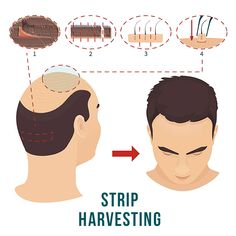 Hair Growth Center is the best hair restoration and hair transplant clinics in London, UK. Our expert team performs FUT and FUE hair transplant procedures! Facial Hair Transplant, Hair Transplant In India, Hair Transplant Cost, Hair Transplant Surgery, Formation Continue, Skin Specialist, Regrow Hair, Stop Hair Loss, Hair Loss Remedies