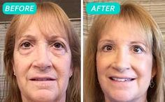 Remove Your Eye Bags In 1 Minute!