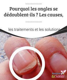 ongles dédoublés causes