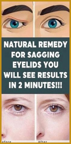Natural Remedy for Sagging Eyelids You Will See Results In 2 Minutes! - Organic Remedies Tips Natural Add Remedies, Natural Treatments, Natural Healing, Holistic Healing, Natural Skin, Holistic Remedies, Herbal Remedies, Health Remedies, Cold Remedies