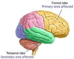 The human brain contains the frontal, occipital, temporal, and parietal lobes. Learn how the brain lobes function to support our thoughts and reactions. Lóbulo Frontal, Aphasia, Neurology, Dysgraphia, Brain Lobes, Brain Diagram, Alzheimer's Symptoms, Dementia Symptoms, Occipital Lobe