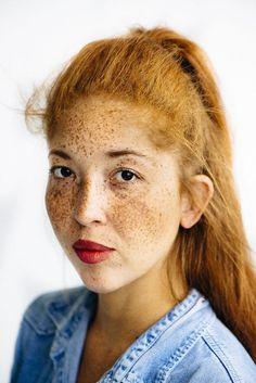 Freckle-Celebrating Portraits : Freckles Photography