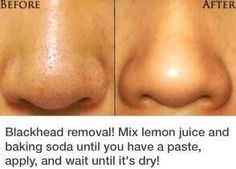 How To: Get Rid Of Blackheads! Just mix it up, let it dry, and use warm water to rinse off gently exfoliating with your fingertips in a circular motion.