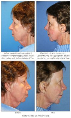 Before & After Neck Lift and Liposuction | Lipocontouring for sagging neck, double chin, turkey neck deformity Lateral View
