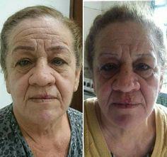 Enfermeira doa 'novas sobrancelhas' para mulheres com câncer