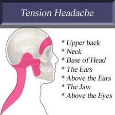 Tension headache Head Pain, Tension Headache