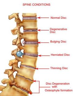 Examples of what happens when the spine is put under the pressures of daily life over a lifespan