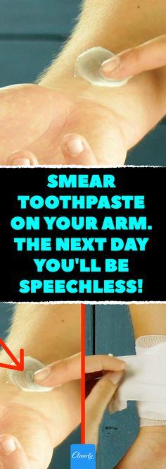 Natural Remedies For Headache Smear toothpaste on your arm. The next day you'll be speechless! Bizarre Home Remedies For Colds, Headaches, Burns Cold Home Remedies, Natural Health Remedies, Natural Cures, Herbal Remedies, Holistic Remedies, Natural Remedies For Burns, Quick Cold Remedies, Head Cold Remedies, Cold And Cough Remedies