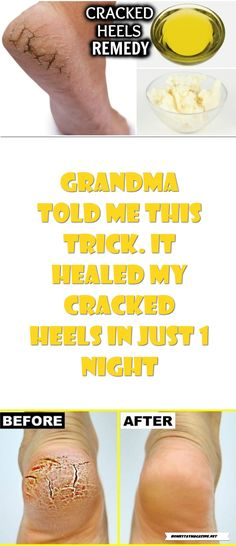 GRANDMA TOLD ME THIS TRICK. IT HEALED MY CRACKED HEELS IN JUST 1 NIGHT