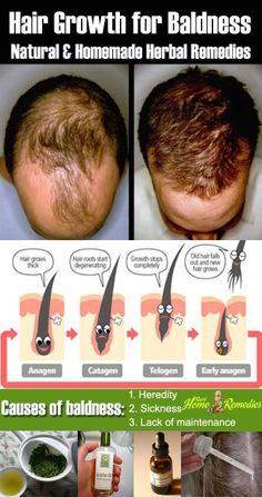 Natural Herbal Remedies for Baldness