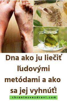 Dna ako ju liečiť ľudovými metódami a ako sa jej vyhnúť! Dna, Healthy, Projects, Alcohol, Log Projects, Blue Prints, Health, Gout