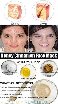 We already know that there are tons of hacks to help fight pimples, including ones that use products found in your kitchen, but were you aware that you can combine this phenomenon with the world's obsession with masks and create your very own skincare solutions? Check out the below natural recipes and say hello to clear, glowing skin!