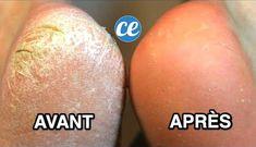 Marre d'avoir les pieds secs avec des talons fendillés et la peau toute craquelée ? Vous cherchez un soin naturel pour vos pieds secs ? C'est vrai que ça fait mal et en plus ce n'est pas très esthétique... Heureusement, il existe un remède magique pour avoir des pieds et des talons tout doux comme un bébé ! Ne vous inquiétez pas, cette méthode en seulement 3 étapes est rapide, facile et 100% naturelle. Regardez : Dry Heels, Tips Belleza, Manicure And Pedicure, Perfect Body, Body Care, Nail Art, Homemade, Nails, Beauty