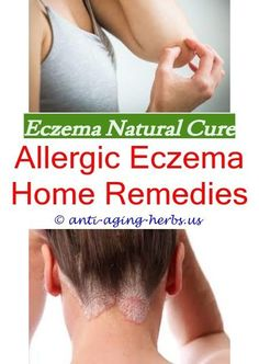 Eczema relief over the counter eczema cream,eczema remedies natural eczema treatment,skin eczema treatment hand eczema cure. Face Eczema, Nummular Eczema, Eczema Causes, Severe Eczema, Eczema Symptoms, Eczema Relief, Itch Relief, Treat Eczema, Best Eczema Treatment
