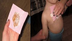 Mom Put Honey On A Towel And Placed On Son's Chest To Cure THIS Common Illness.