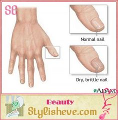 Tips For Healthy And Beautiful Nails Brittle Hair Stay