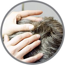 Thus, not only controlling your hair fall but also you need to treat the causes of your hair fall like by using natural remedies for dandruff to prevent hair loss.