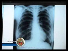 Lečenje astme, zapaljenja i raka pluća na prirodan način (epizoda 4) - Nikola Marković - YouTube