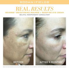 """""""I am amazed that in only 3 months, spots are noticeably smaller. I am proud to go every day without foundation."""" Brooke, R+F Consultant.   """"SHARE"""" these radiant results. #RFSkinBrightening"""