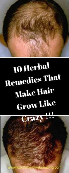 10 Herbal Remedies That Make Hair Grow Like Crazy - Time To Live Amazing