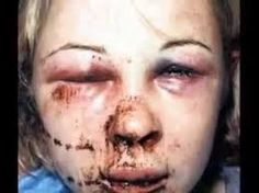 abused women - Google Search