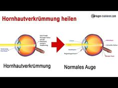 Hornhautverkrümmung heilen - effektive Augenübung um die Sehkraft zu verbessern - YouTube Training, Youtube, Eyes, Health, Work Outs, Excercise, Onderwijs, Youtubers, Race Training
