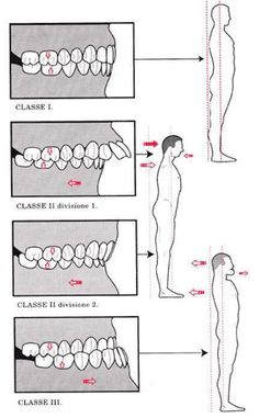 Image result for teeth and posture