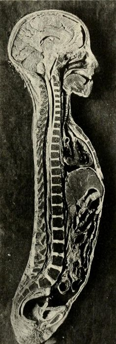 Frozen human cross-section, from Joseph D. Bryant and Albert H. Buck's American practice of surgery: Vol. 4, 1906