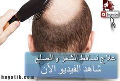 تعرفو على علاج تساقط الشعر والصلع بطرق سهلة ومجربة, علاج تساقط الشعر وال...