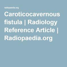 Caroticocavernous fistula | pulsitile tinnitus Radiology Reference Article | Radiopaedia.org