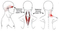 Splenius Capitis | The Trigger Point & Referred Pain Guide