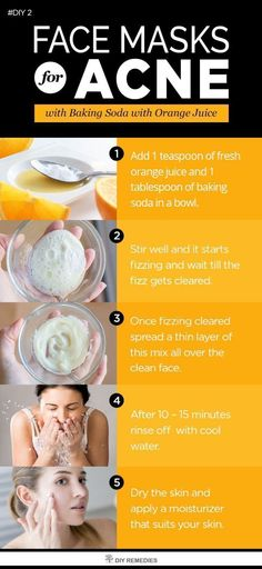 Idée pour diy masque : natural & diy skin care : baking soda with Best Acne Face Masks, Acne Mask, Acne Skin, Acne Scars, Oily Skin, Baking Soda Mask, Baking Soda For Acne, Skin Care Remedies, Acne Remedies